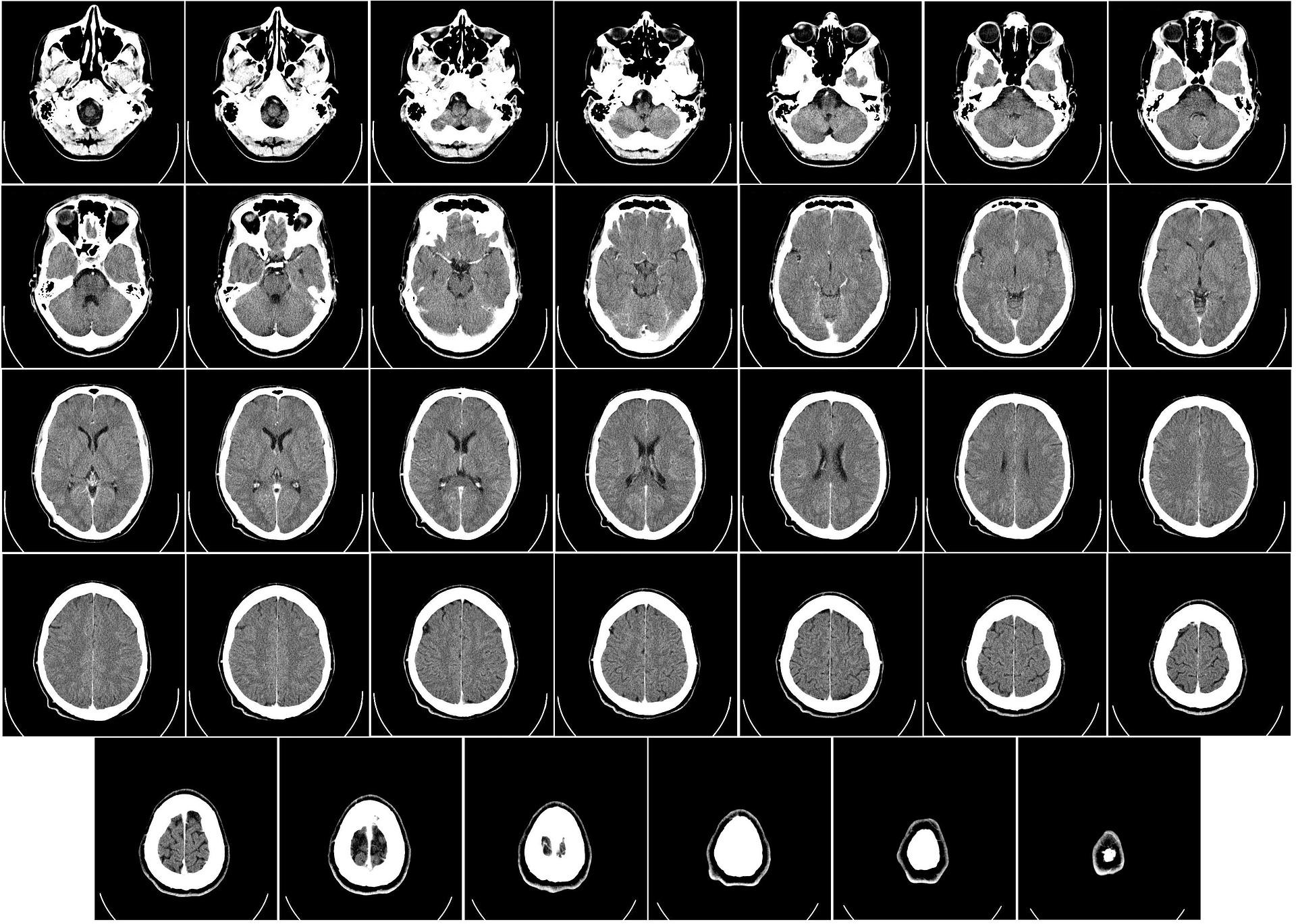 脳レントゲン.jpg